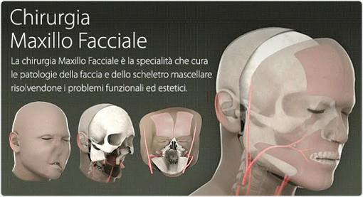 All'ospedale Parini un'équipe multidisciplinare di chirurgia maxillofacciale