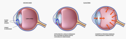 Da sabato a martedì screening gratuito di prevenzione del glaucoma