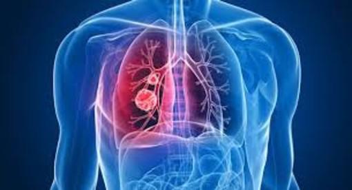 Ad Aosta convegno formativo sulle nuove frontiere della medicina polmonare